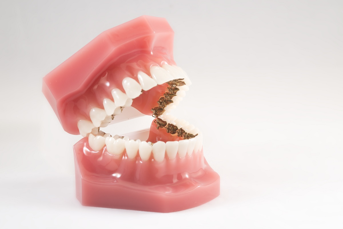teeth model with braces
