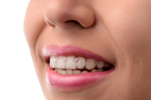 person wearing an invisalign