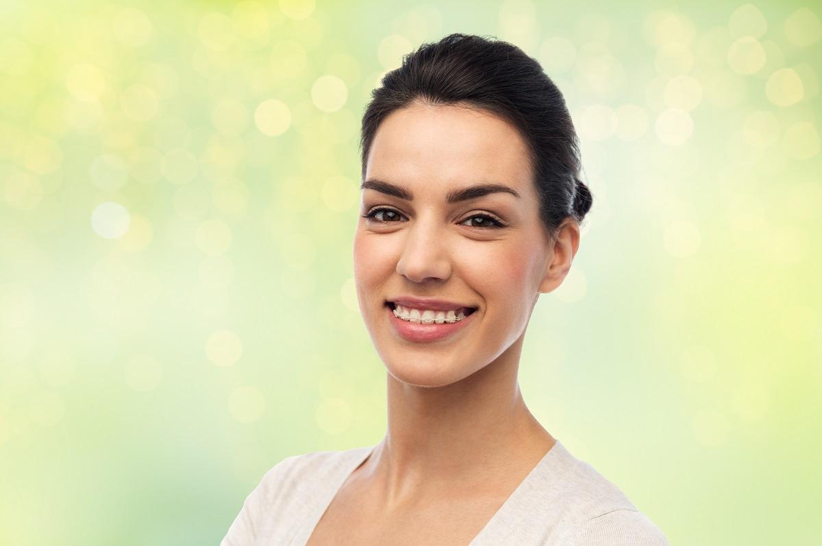 cosmetic braces